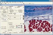 Mikroskopkamera ProgRes: Neuer Image-Pro Treiber für ProgRes®