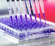 Die Kieler Forschenden untersuchten die Wirkung der Medikamentenpaare auf das Bakterienwachstum und die Resistenzbildung des Keims. (Bild: Universität Kiel, Christian Urban)