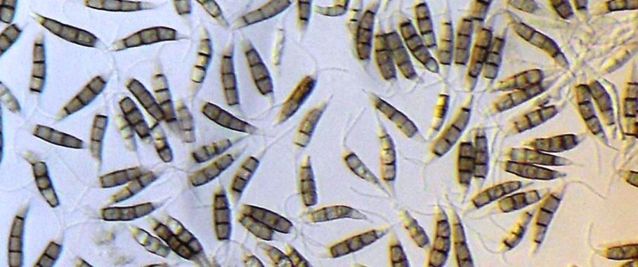Quelle für medizinische Wirkstoffe: Neue Substanzen in marinen Pilzen aus der Nordsee entschlüsselt