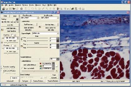 Mikroskopkamera ProgRes: Neuer Kameratreiber für ProgRes®