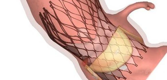Simulationssoftware: Simulation von Herzoperationen