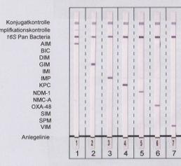Neuer Line-Probe-Assay: Schneller und gezielter Nachweis von 13 Carbapenemasen