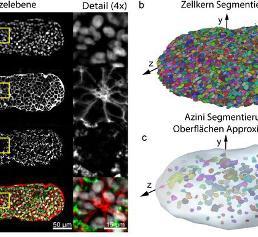 Lichtscheiben-Fluoreszenzmikroskopie: Biologische Proben in 3D