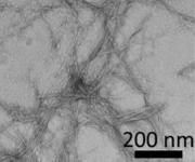 Amyloidplaques bei Alzheimer und Diabetes: Neue Leitstrukturen für Therapeutika