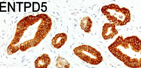 Ausschnitt aus einem Bauchspeicheldrüsen-Tumor: Tumorzellen, die viel p53 bilden (braun gefärbte Zellen im oberen Bild), produzieren auch viel ENTPD5 (braune Färbung im unteren Bild). (Aufnahme: AG Stiewe / Philipps-Universität Marburg)