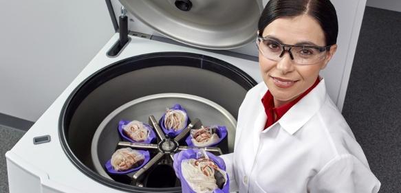Thermo Scientific Heraeus Cryofuge 8 bietet Platz für 6 x 550-ml-Blutbeutel und kann bei Verwendung des gleichen Bechersystems für 8 x 550-ml-Beutel aufgerüstet werden.