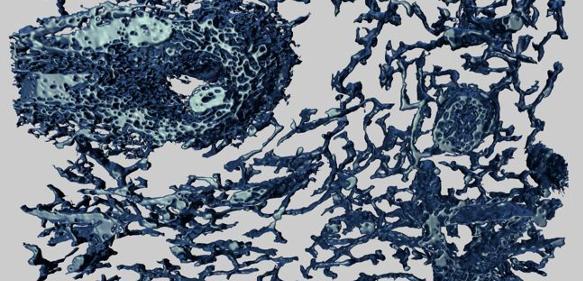 Blutgefäße - 3D-Bilder vom Netzwerk kleinster Kapillaren - LABO ONLINE
