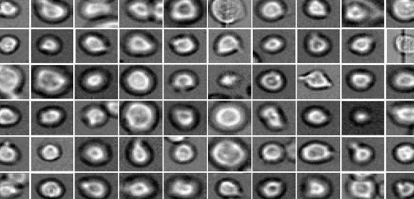 Was wohl aus ihnen wird? Blutstammzellen unter dem Mikroskop: Mit Hilfe neuer Methoden können Helmholtz-Wissenschaftler voraussagen, wie sie sich entwickeln werden. (Quelle: Helmholtz Zentrum München)