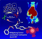 Positronen-Emissions-Tomographie: Eiweißscheren in Tumoren sichtbar gemacht