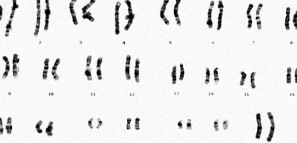 Wie viele Chromosomen in der menschlichen Geschlechtszelle