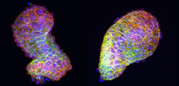 Explantierte Zebrafisch-Herzen in der Petrischale