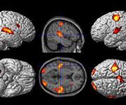 Die Hirnaktivität lässt sich farbig darstellen, wenn man das Hirn mittels Magnetresonanz-Tomographie durchleuchtet. (Abb.: Benjamin Straube)