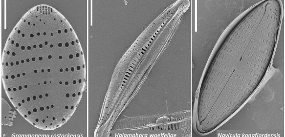 Mikroalgen