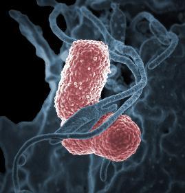 Klebsiella pneumoniae, ein häufiger Erreger von Krankenhausinfekten, unter dem Elektronenmikroskop. (Bild: Niaid, Wikimedia)