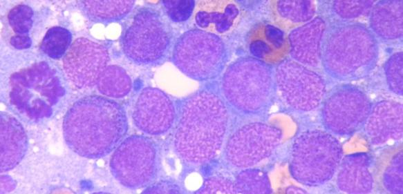 Knochenmarkzellen