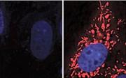 Parkinson-Forschung: Mögliche neue Therapie entdeckt