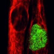 Therapie mit humanen Muskelstammzellen: Wissenschaftler entwickeln neue Methode