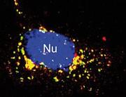 Stoffwechselkrankheit Mukolipidose: Defekte Ionenkanäle lassen sich teilweise reaktivieren