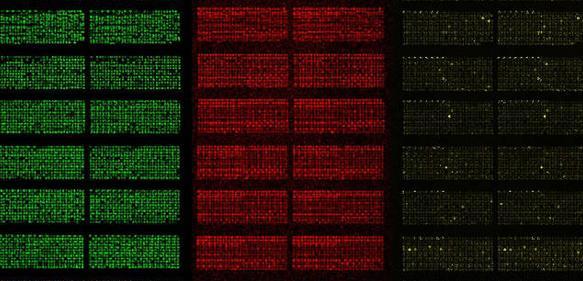 Protein-Microarrays ermöglichen es, tausende Proteine in einem einzigen Experiment zu studieren. Microarrays sind wenige Zentimeter groß und haben tausende Testfelder auf kleinstem Raum (Foto: TUM/Falter-Braun)