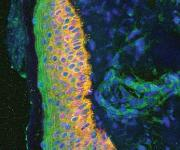 Die gemeine Schuppenflechte, auch Psoriasis vulgaris genannt, ist eine entzündliche Hautkrankheit. (Quelle: Helmholtz Zentrum München)