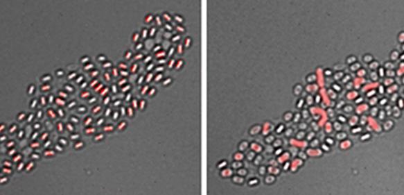 """Mikrobiologie: Bakterielle Sporen mit """"Gedächtnis"""""""