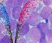 Krebsstammzellen mit einem charakteristischen Proteinexpressionsprofil