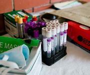 Tuberkulose-Bluttest