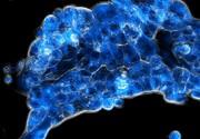 Krebstherapie: Strategie zur Reduktion von Nebenwirkungen