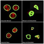 Wiskott-Aldrich-Syndrom: Molekulare Ursache für Erbkrankheit entdeckt