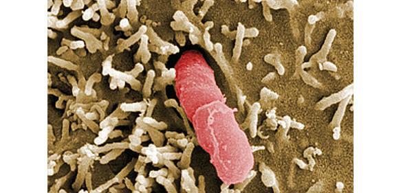 Yersinia pseudotuberculosis (© HZI/Manfred Rohde)