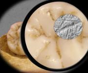 Die Dental Microwear Texture Analysis – die Zahnabnutzungsanalyse, die in der Studie verwendet wurde –, umfasst die Untersuchung und Analyse von winzigen Abnutzungsspuren auf der Zahnoberfläche im Größenbereich unter einem Mikrometer. (Abbildung: Sireen El Zaatari)