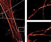 Beobachtung von einzelnen Histidin-markierten Zytoskelletmolekülen mit Hilfe der Super-Resoltuion-Mikroskopie (dSTORM).