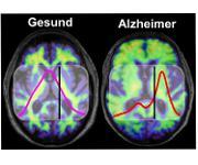 Ablagerungen im Gehirn