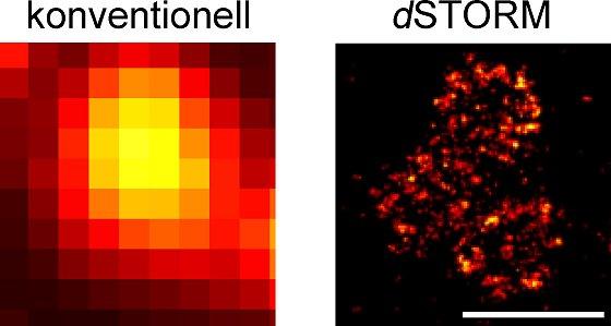 Neurotransmitter im Visier: Molekulare Lernmaschinen unter dem Mikroskop