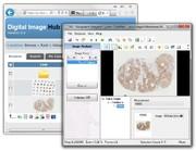 News: Bildanalyse-Software für die digitale Pathologie