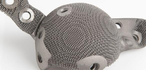 Additiv gefertigte Hüftgelenkpfanne