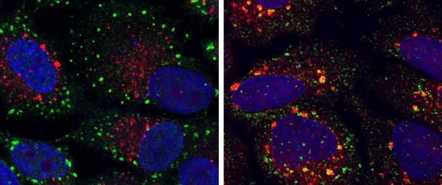 Farbige Mikroskopie-Aufnahmen, die Zellen mit normalen (grüne Punkte) und abnormalen (gelbe Punkte) Stressgranula zeigen