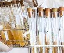 Wissenschaftler zeigen Röhrchen mit Bakterien aus der Stammsammlung