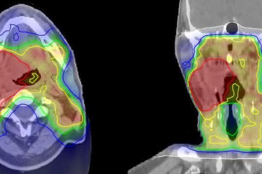 Bestrahlungsplan eines Kopf-Hals-Tumors