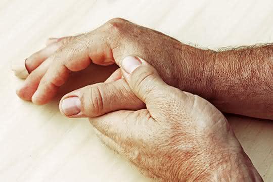 Immunologie: Schlüsselrolle von ILC2 bei der Entstehung entzündlicher Arthritis