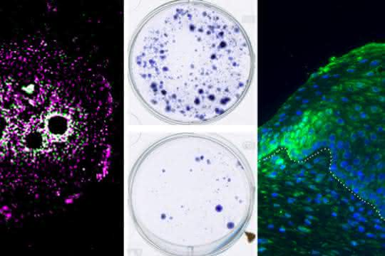 Proteinforschung: Körpereigener Tumorblocker entdeckt