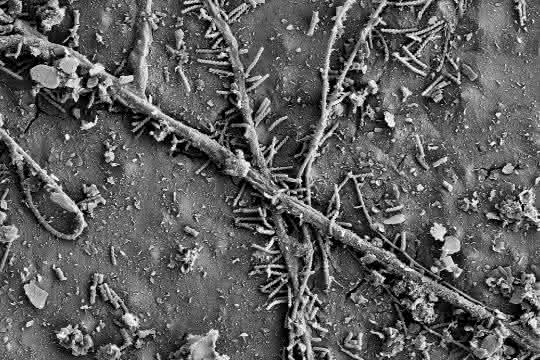 Mikrobiologie: Mikroorganismen können Plastik im Boden zersetzen