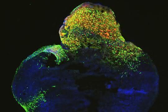Tumorforschung mit Gehirn-Organoiden: Krebsentstehung in der Petrischale nachspielen