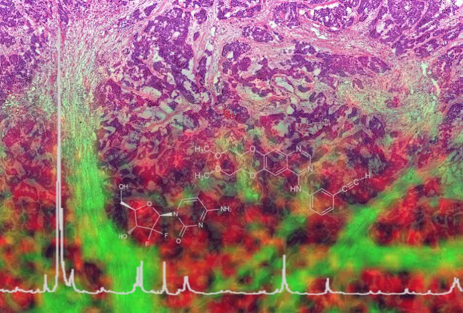 Mit der neuen Technologie lässt sich eine Art molekulare Landkarte erstellen. (Bild: Helmholtz Zentrum München)