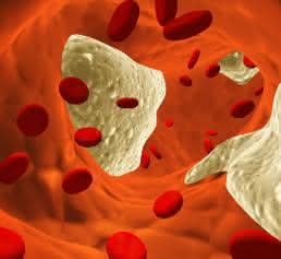 Grafik Blutgefäß mit Erythrozyten und Ablagerungen