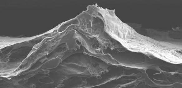 Elektrospinning: Kollagen-Vlies für die regenerative Medizin