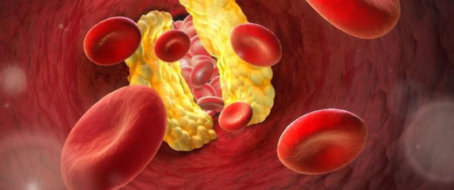 Durchblutungsstörungen in den Arterien