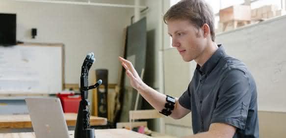Maßgeschneiderte 3D-Druck-Armprothesen