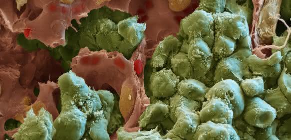 Rasterelektronenmikroskopische Aufnahme einer Lungenmetastase