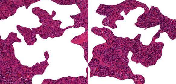 Schnitt durch Brustkrebsgewebe
